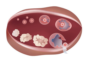 Первичная (преждевременная) недостаточность яичников