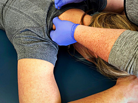 What is dry needling? How can dry needling help me?
