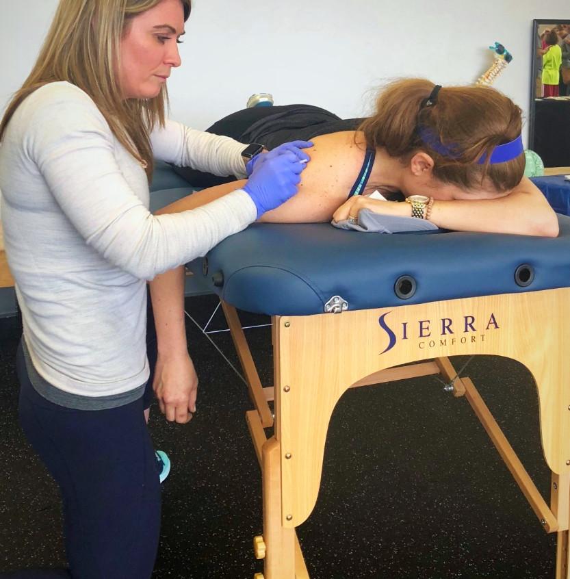 Dry needling for shoulder pain