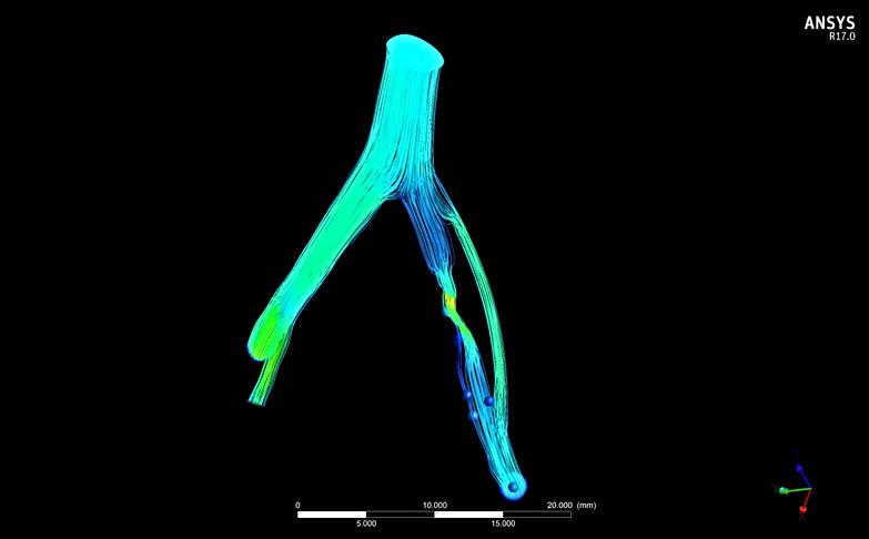 Simulação Fluidodinâmica (CFD) de Segmento Vascular com Estenose e Bypass