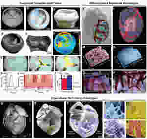 Bioimpressão 3D FRESH em escala de órgão, de válvula cardíaca com três folhetos, vasculatura multiescalar e coração humano em escala neonatal
