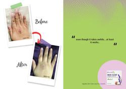 Skin Remedies Testimonials - IMAGES-08