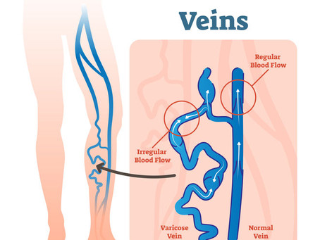 Varicose Veins and What to do About Them.