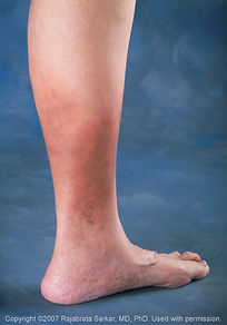 leg_skin_changes_lrg.jpg