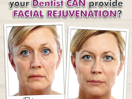 We now offer Facial Rejuvenation!