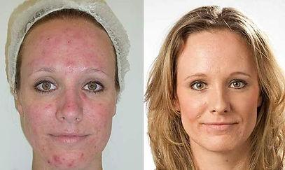 acne-behandeling-voor-en-na.jpg