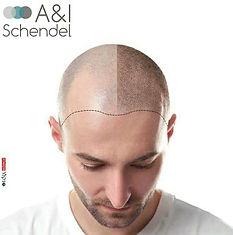 scalp-adi-schendel.jpg