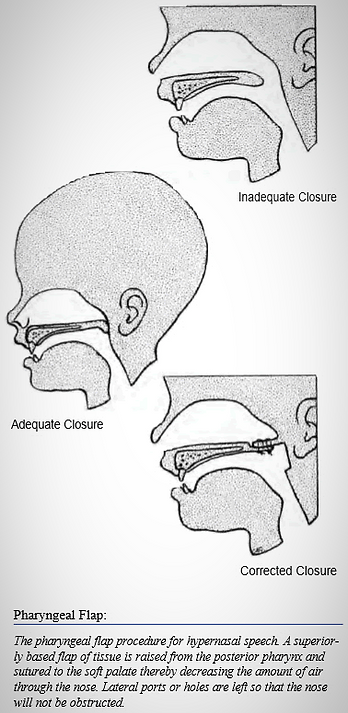 Pharyngeal Flap