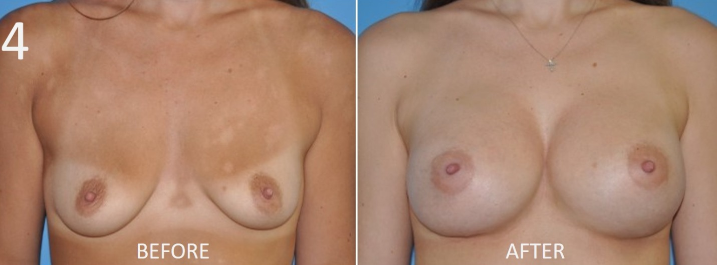 Breast Augmentation Larry Sargent 4
