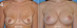 Breast Augmentation Larry Sargent 4