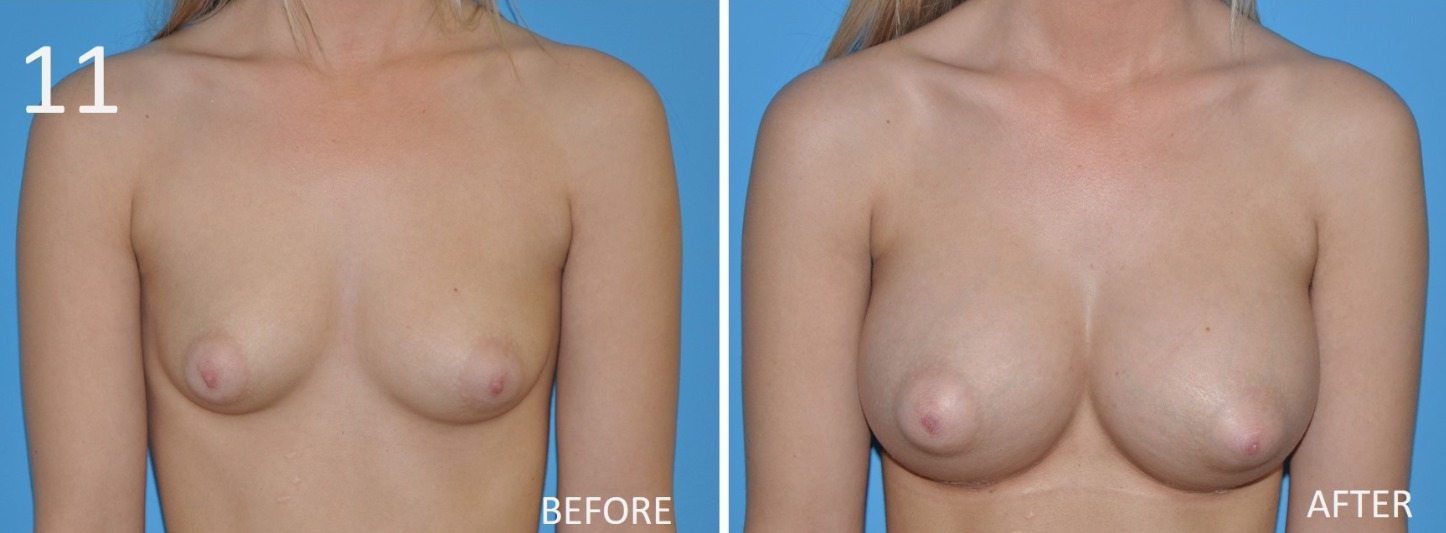 Breast Augmentation Larry Sargent 11