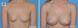 Breast Augmentation Larry Sargent 11