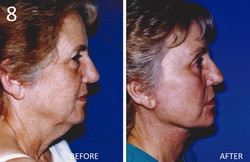Facelift 8 Larry Sargent MD