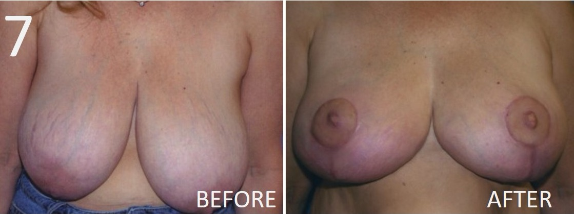 Breast Reduction 7 Larry Sargent MD