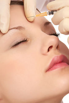 Restylane Filler Med Spa Salt Lake City