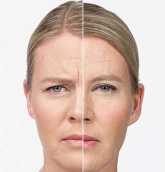 botulinum toxin type A  Sargent MD