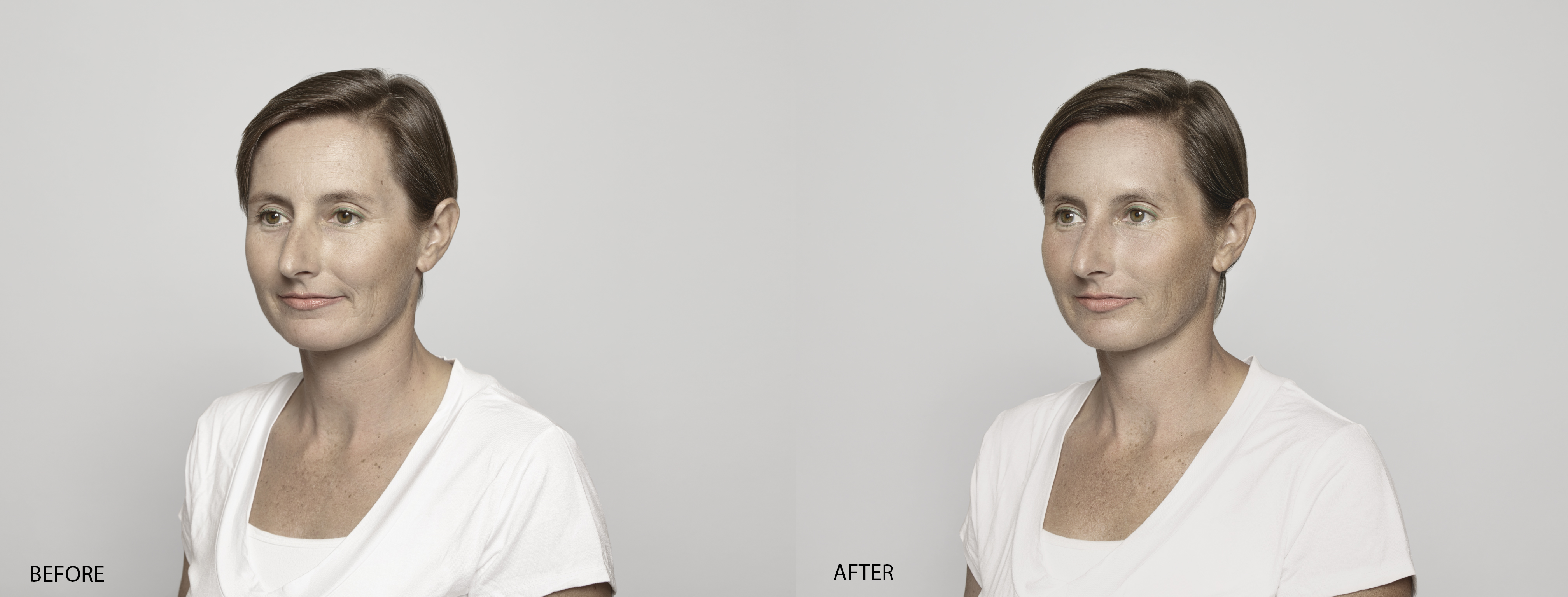 Anne Laure Before & After Restylane