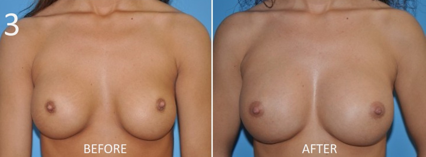 Breast Augmentation Larry Sargent 3