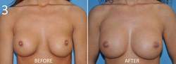 Breast Augmentation Larry Sargent 3