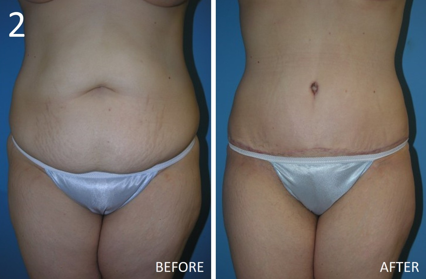 Abdominoplasty 2 Larry Sargent MD