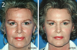 Facelift 2 Larry Sargent MD