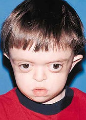 Crouzon Syndrome Cleft and Craniofacial Utah