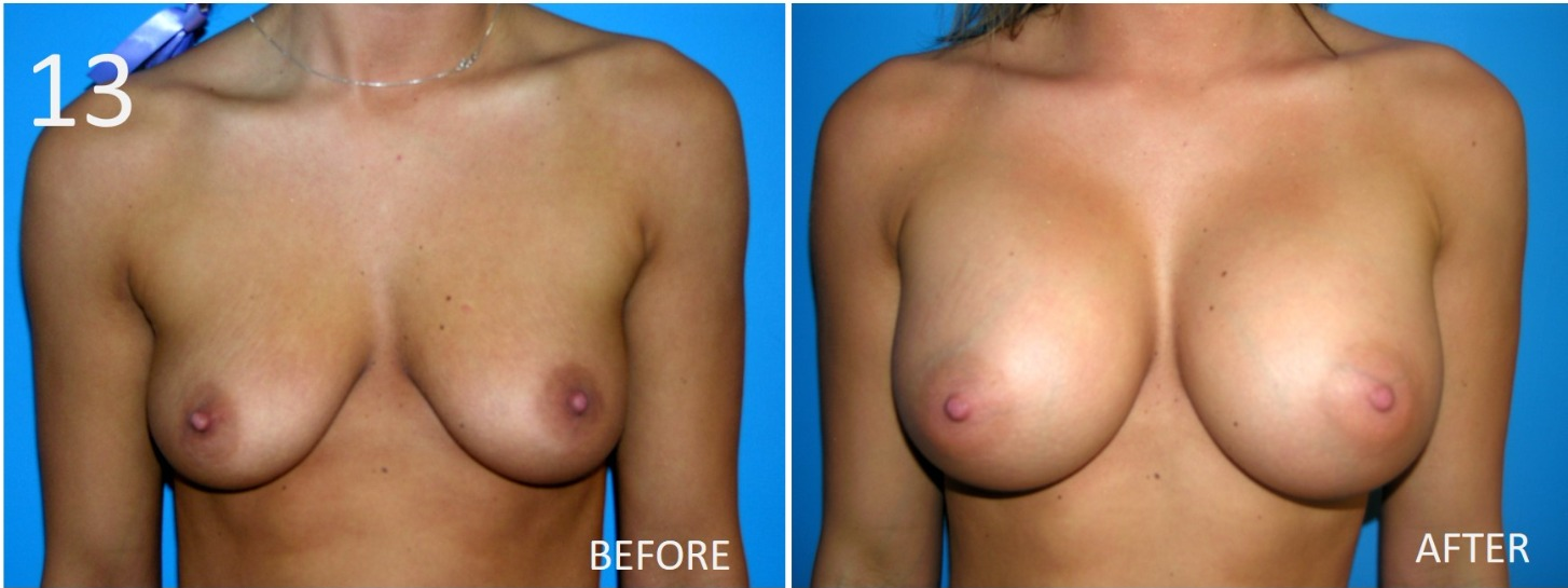 Breast Augmentation Larry Sargent 13
