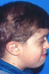 Crouzon Syndrome