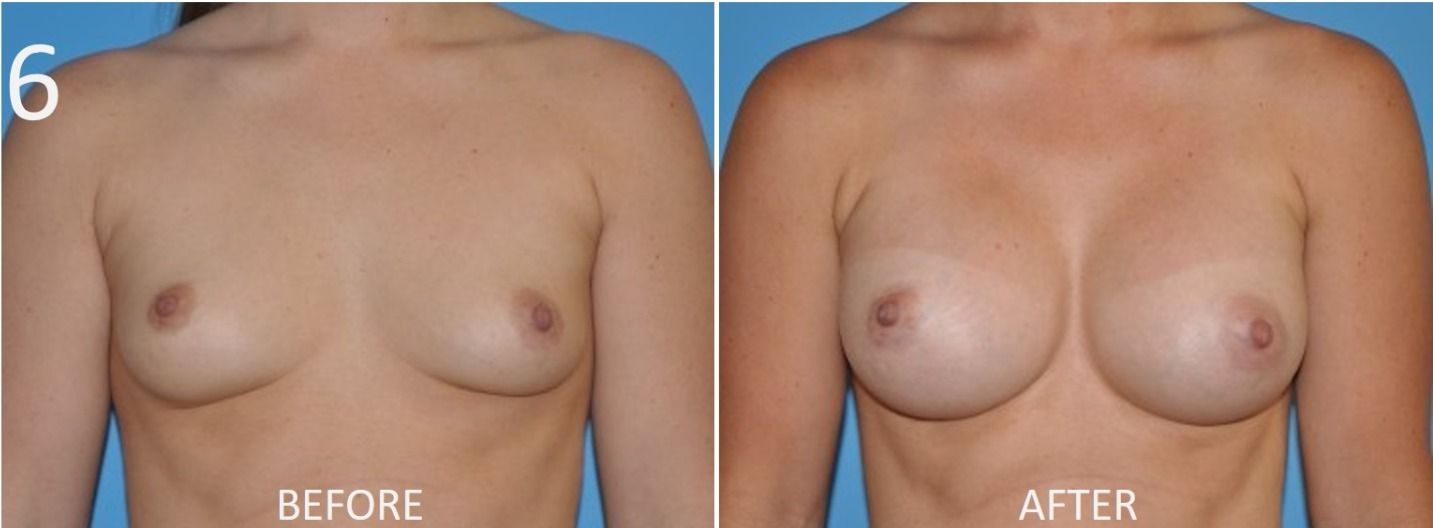 Breast Augmentation Larry Sargent 6