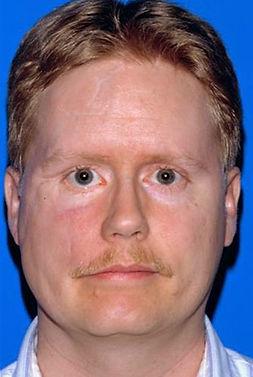 Post-Traumatic Facial Deformities