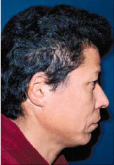 Traumatic Ear Deformities