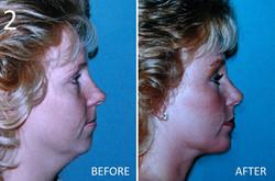 Chin Augmentation 2