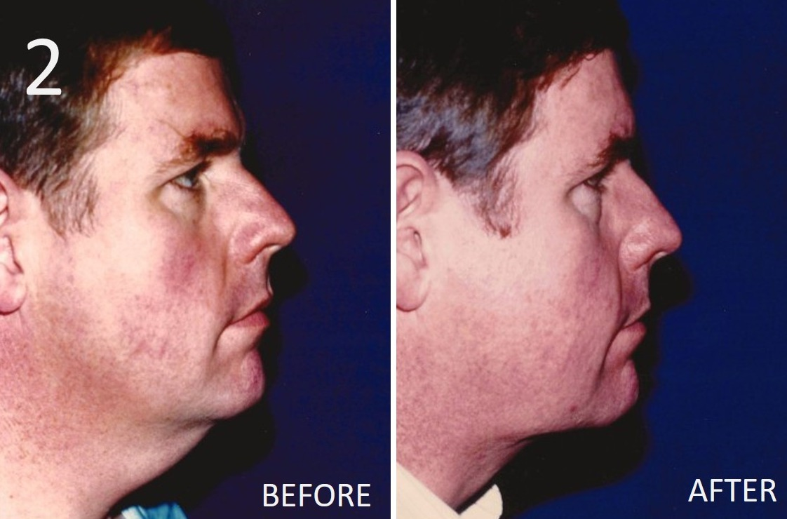 Liposuction 2 Larry A Sargent MD