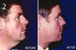 Liposuction 2 Larry A Sargent MD