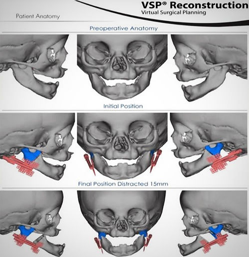 Pierre Robin Syndrome Preoperative Anatomy Modeling