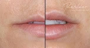 Med Spa Salt Lake City Restylane Lips