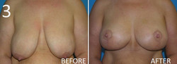 Mastopexy 3 Larry A Sargent MD FACS