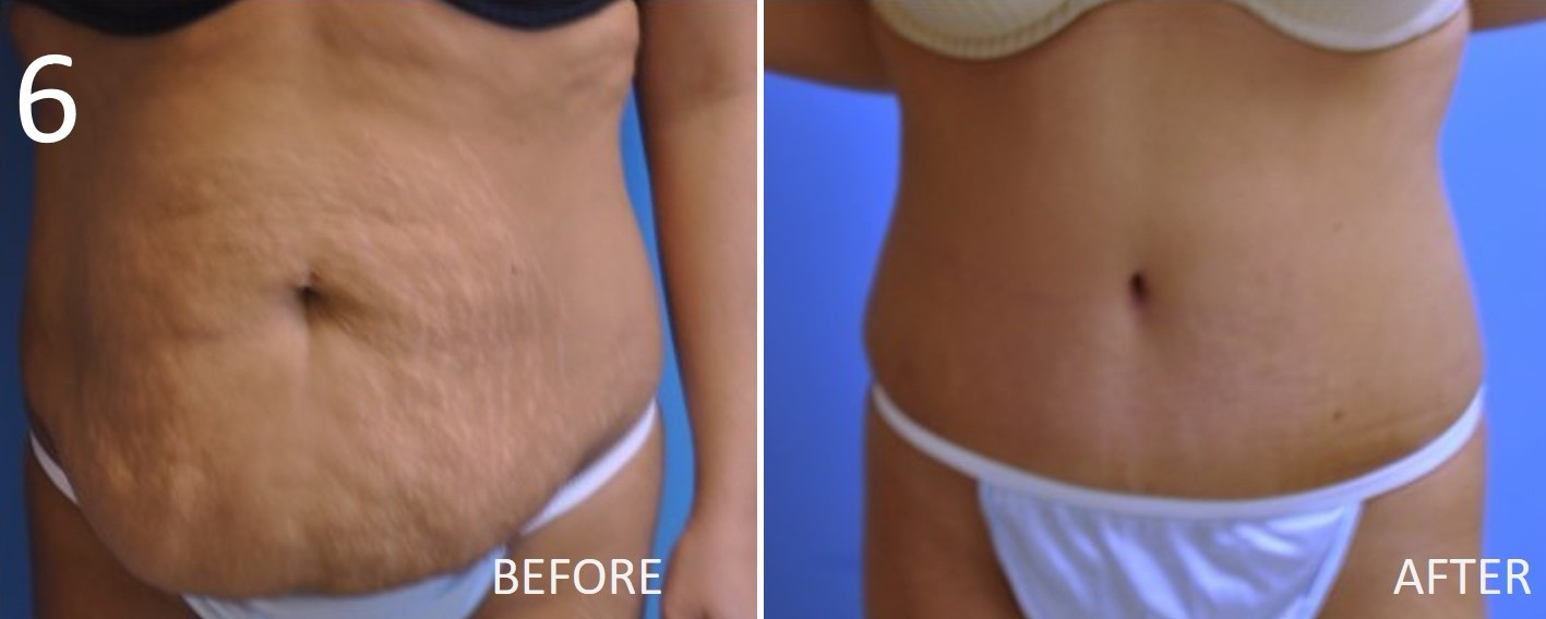 Abdominoplasty 6 Larry Sargent MD