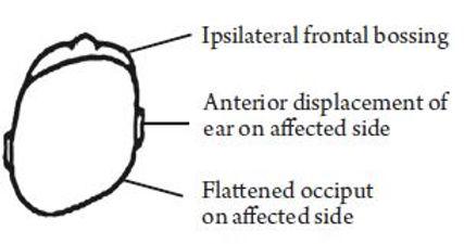 Positional Head Deformities