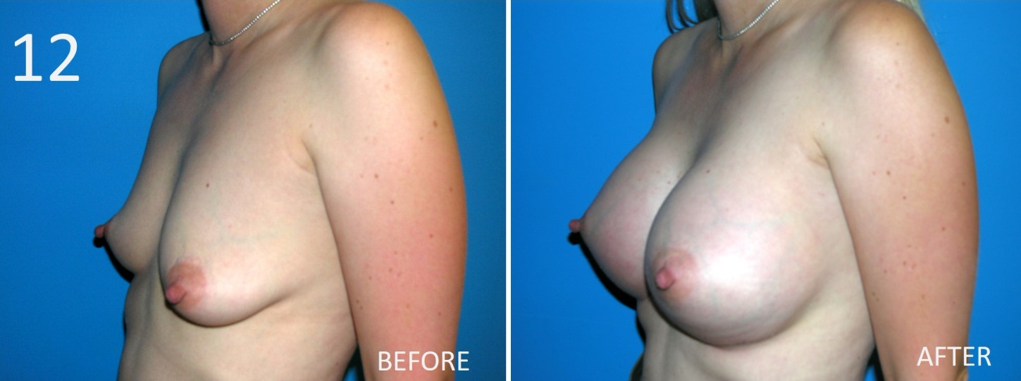 Breast Augmentation Larry Sargent 12
