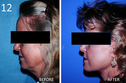 Facelift 12 Larry Sargent MD