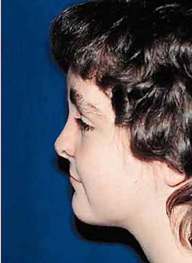 Facial Bipartition