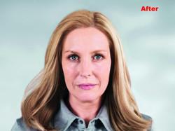 Sculptra Facial Rejuvenation 5