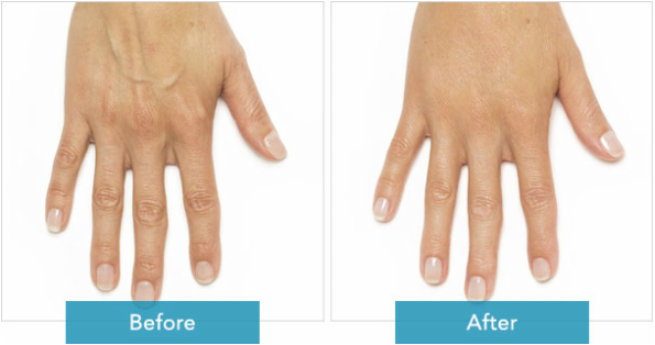 Radiesse Hand Rejuvenation 2