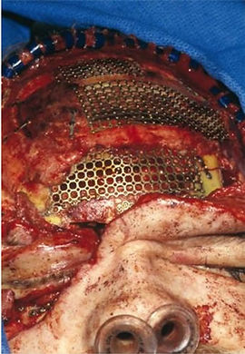 Nasoethmoid Fractures