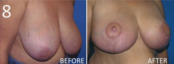 Breast Reduction 8 Larry Sargent MD
