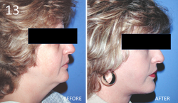 Facelift 13 Larry Sargent MD