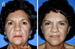 Facelift 6 Larry Sargent MD