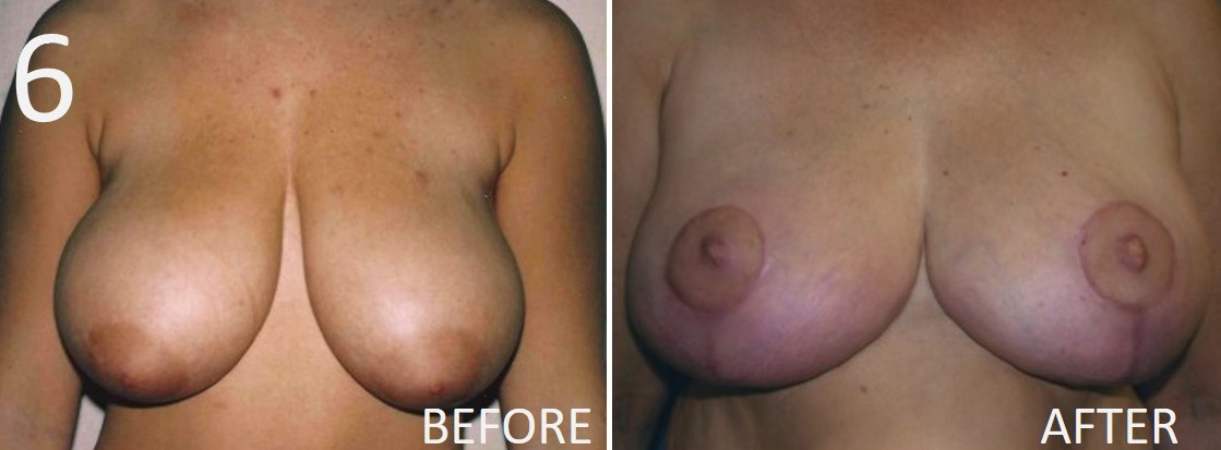 Breast Reduction 6 Larry Sargent MD
