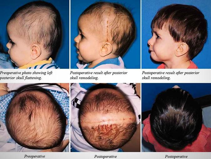 Lamoid Craniosynostosis